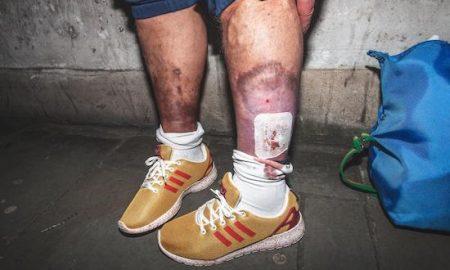 Heroin Legs