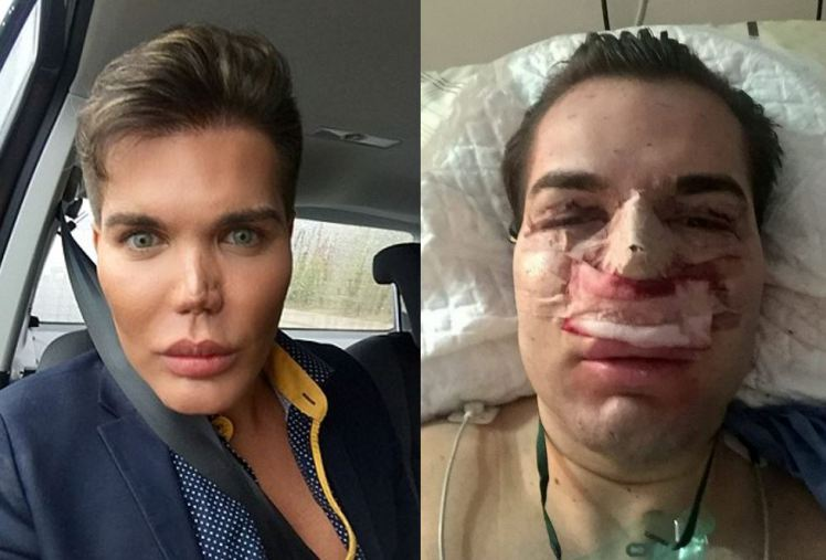 The Human Ken Doll Vows 'No More Surgery' After Mortifying ...
