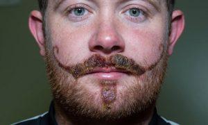 Henna Moustache Scar