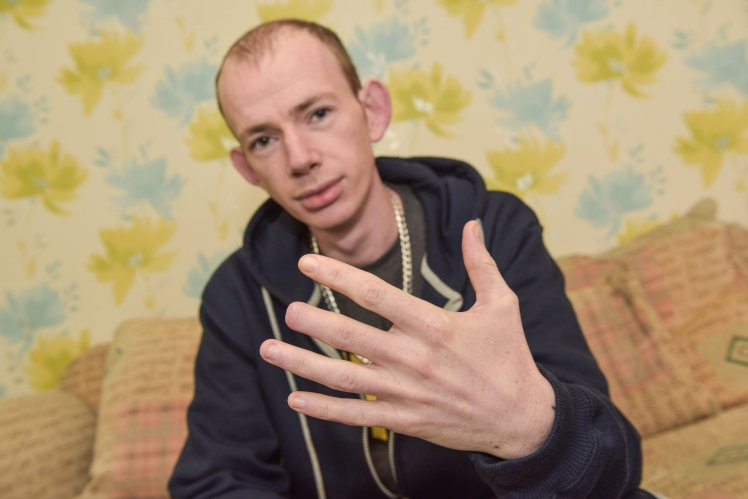 MAN LOSES FINGERTIP ON NIGHT OUT