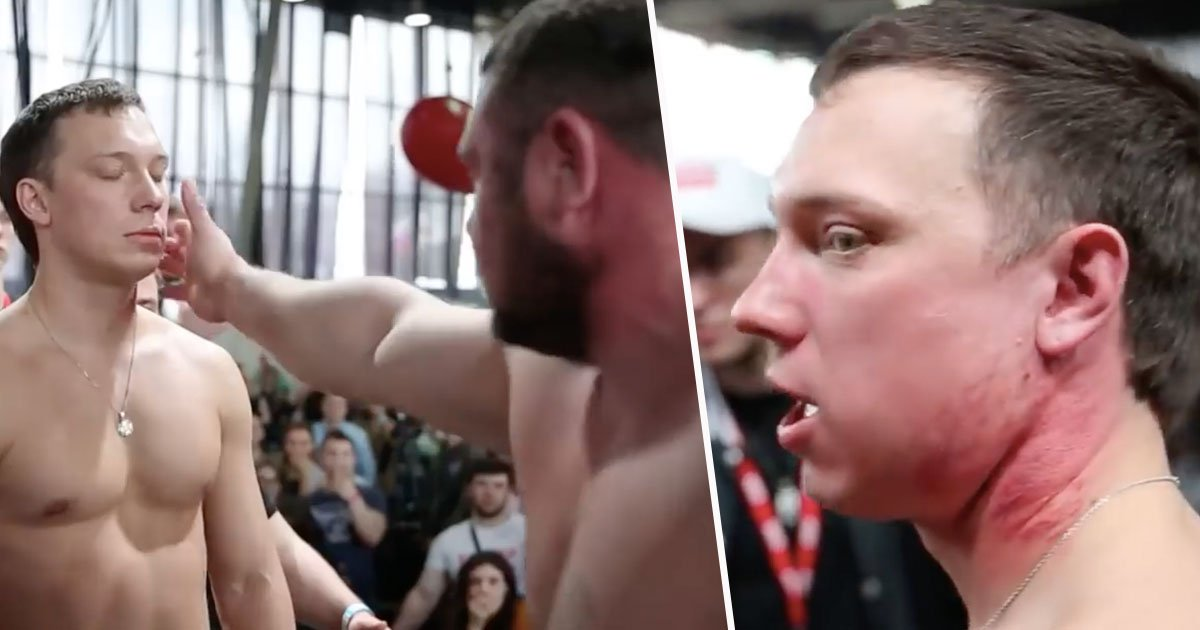 Face slapping contest