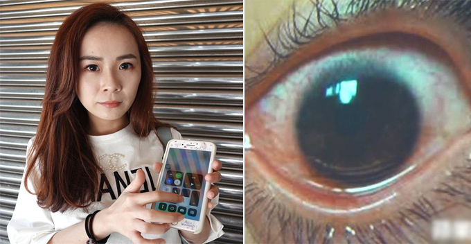 Image result for HOLES BURNED INTO EYES FROM MOBILE PHONES