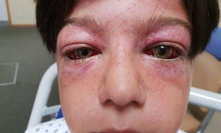 Burst Eyelids
