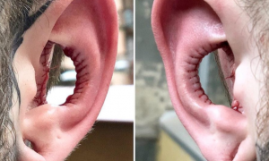 Hole Ears