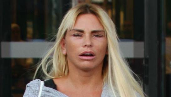 Katie Price face lift